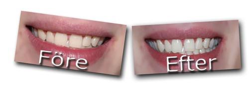 Tandblekning före och efter
